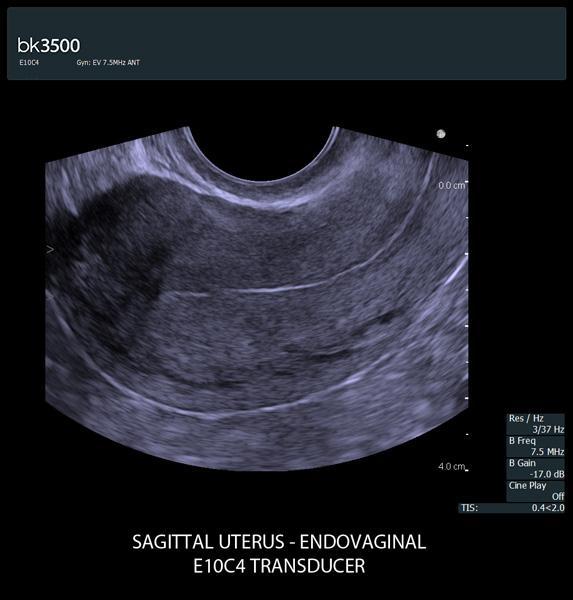 uterus_e10c4_3500.jpg