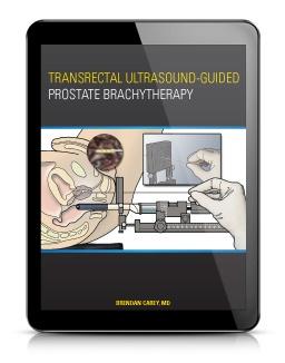 brachytherapy ebook